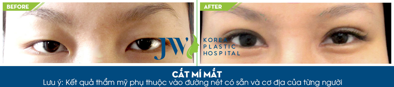 Phẫu thuật thẩm mỹ mắt xếch