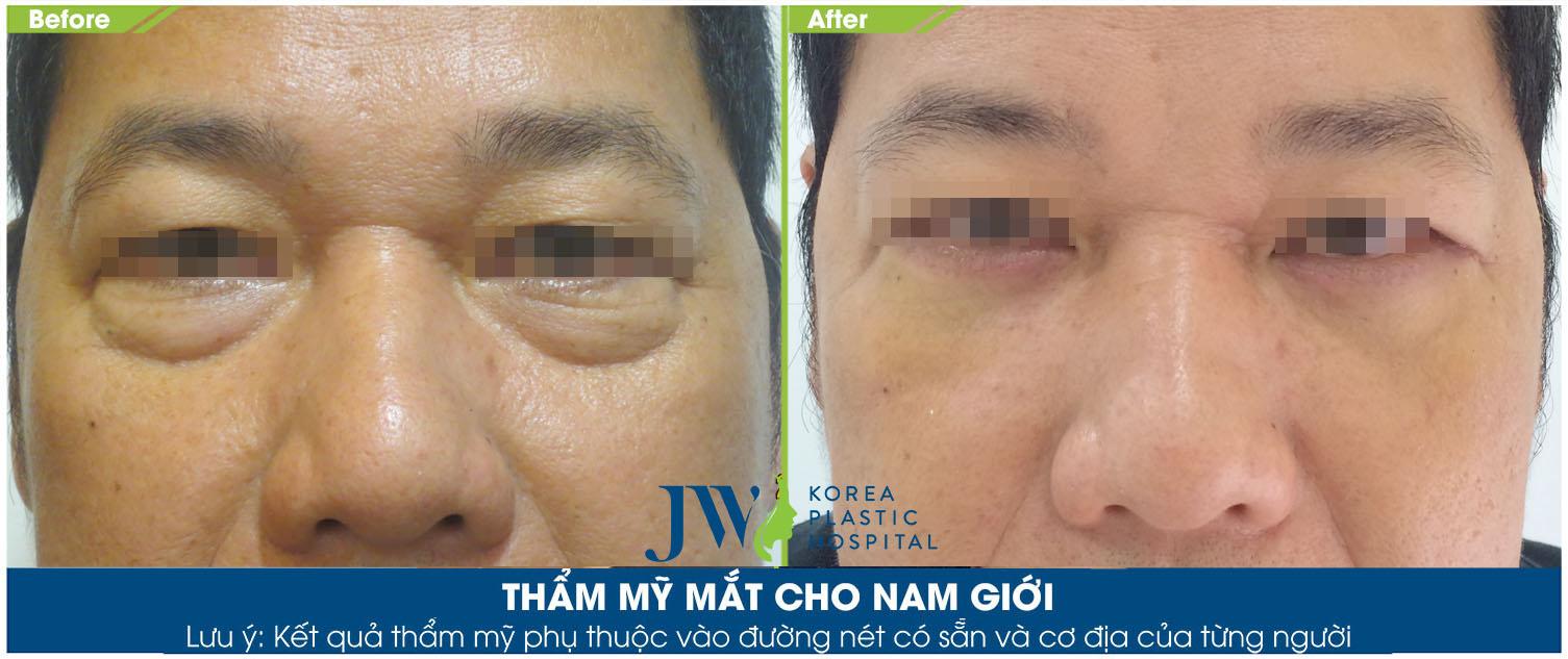 Thẩm mỹ mắt cho nam giới - Trước và sau 2