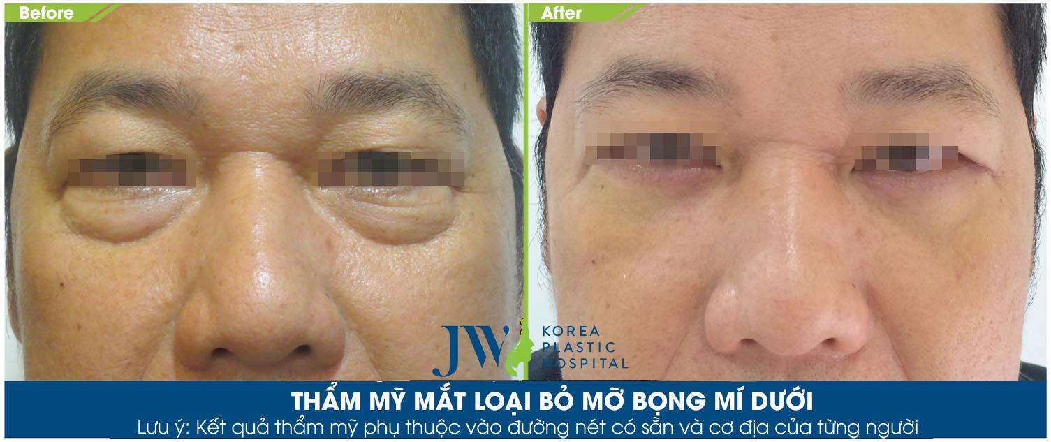 Phẫu thuật cắt mắt 2 mí cho nam giới - Trước và sau 1