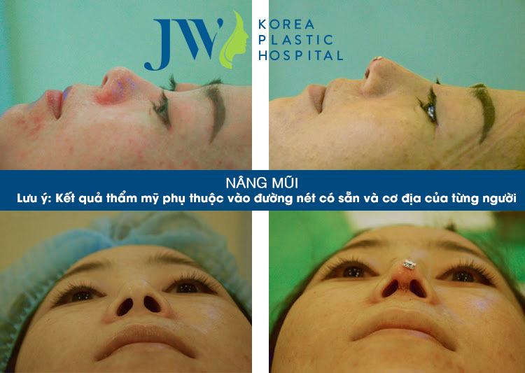 Phẫu thuật thẩm mỹ nâng mũi Hàn Quốc