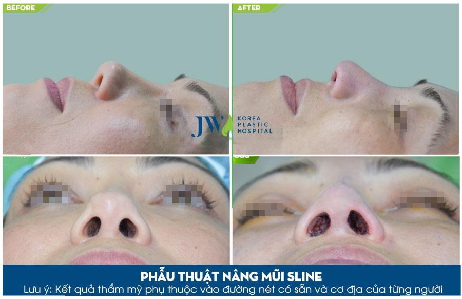 Phẫu thuật thẩm mỹ mũi s line