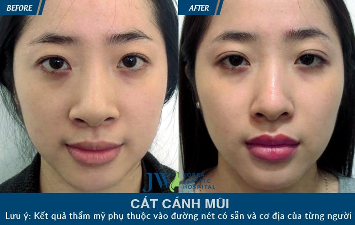 Khách hàng với chiếc mũi đẹp, không để lại sẹo sau khi thu gọn cánh mũi