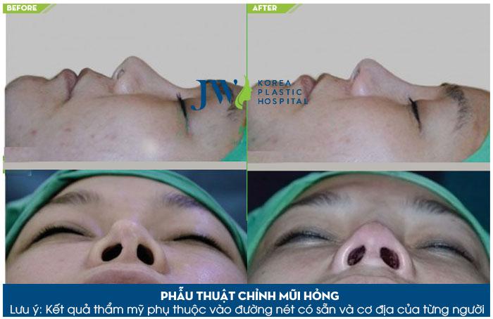 Cận cảnh chiếc mũi được sửa