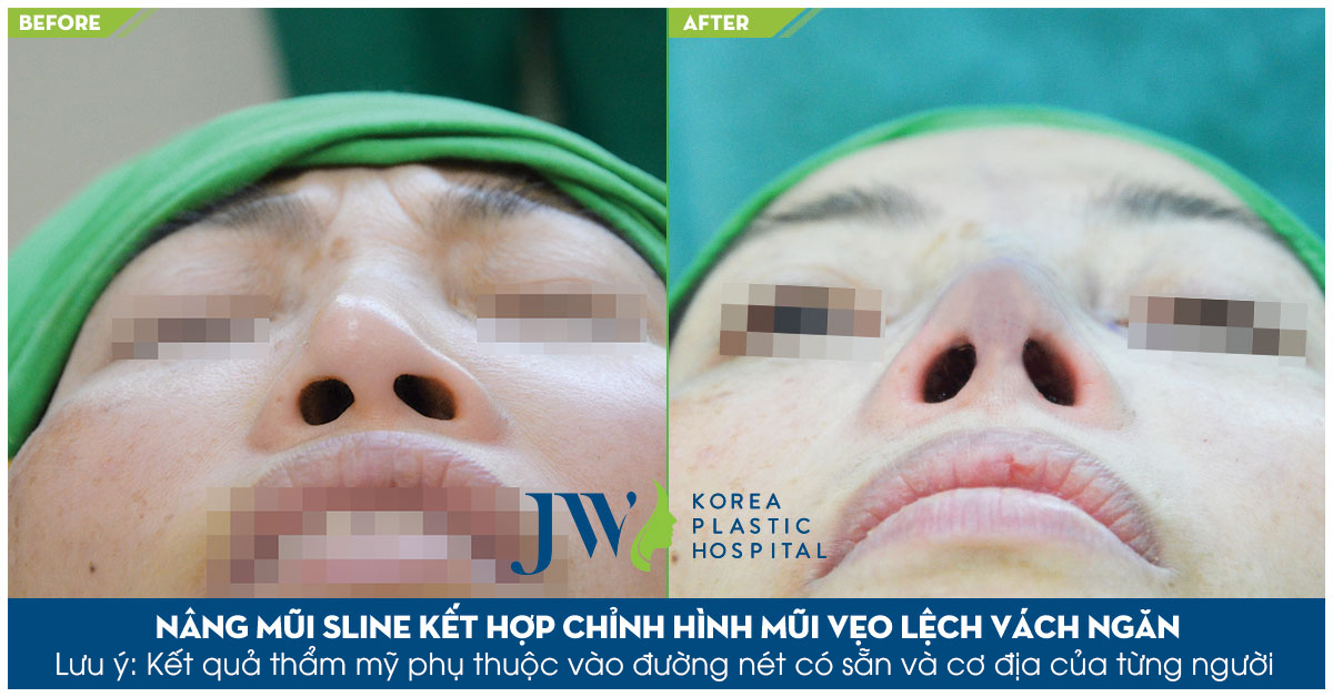 Nâng mũi S Line tại JW giúp tái tạo lại cấu trúc mũi từ đó mang lại dáng mũi đẹp và phù hợp với khuôn mặt