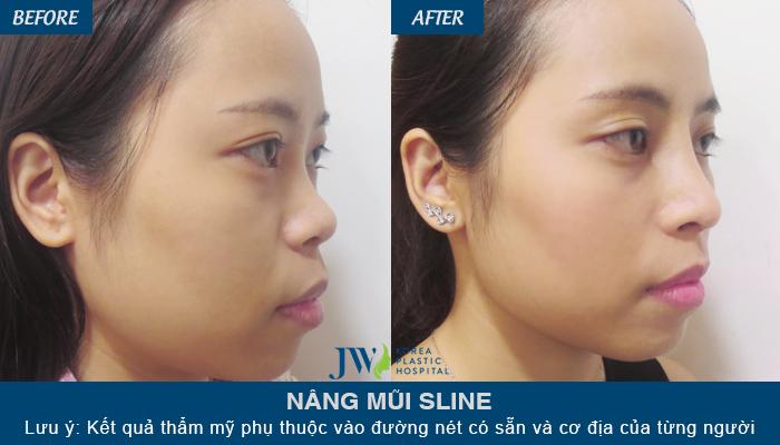 Sau khi nâng mũi S Line chỉnh lại dáng mũi, cô gái tự tin hơn với chiếc mũi đẹp hoàn thiện của mình