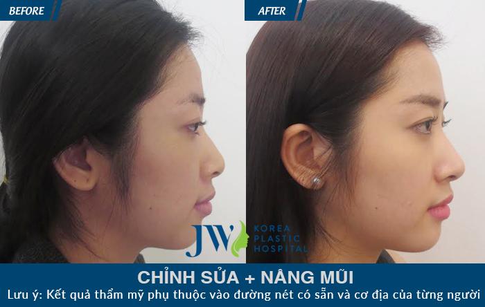 Khách hàng từng phẫu thuật mũi hỏng và may mắn khi tìm đến JW để được chỉnh sửa, đồng thời nâng mũi tạo hình dáng đẹp tự nhiên