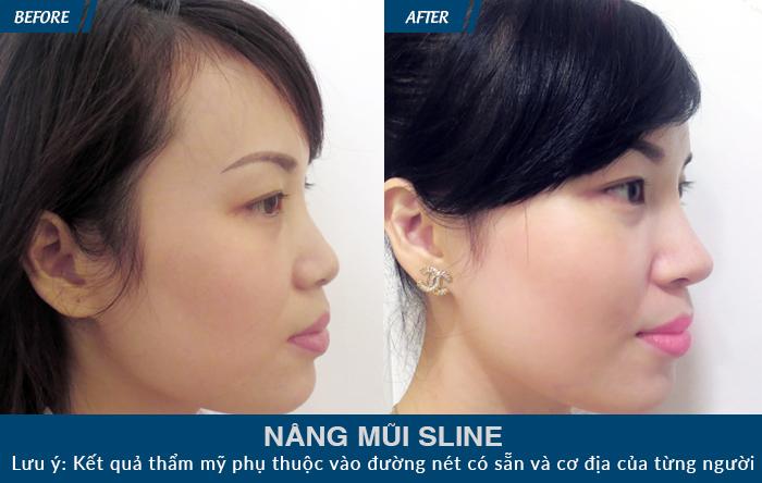 trước và sau khi thực hiện nâng mũi S Line
