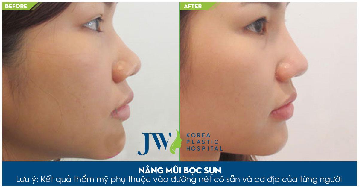 Tìm hiểu phẫu thuật nâng mũi trên webtretho - Trước và sau 1