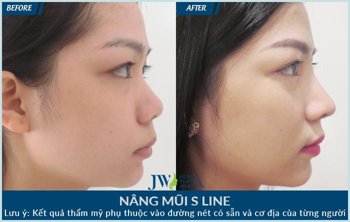 Chiếc mũi của khách hàng gọn đẹp hơn sau khi nâng mũi S Line