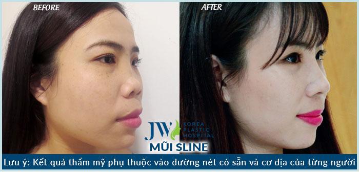 Hình ảnh khách hàng thực tế trước và sau khi nâng mũi S Line