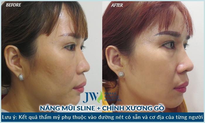 Chuyên khoa tái thẩm mỹ mũi chuẩn Hàn hàng đầu tại Việt Nam được cho ra mắt trong thời gian gần đây