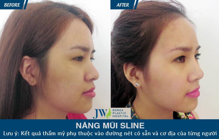 khắc phục tình trạng mũi gồ ở nữ giới