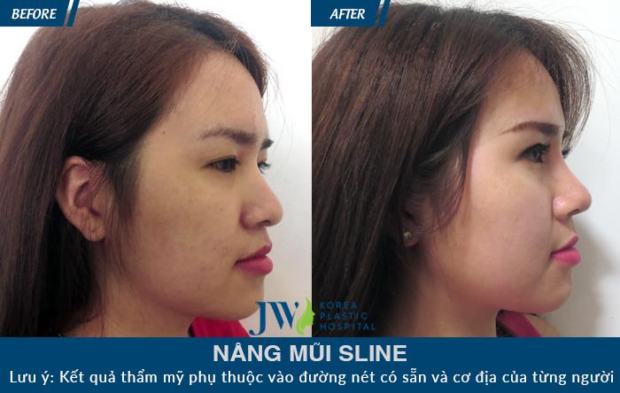 Hình ảnh khác biệt của khách hàng trước và sau khi nâng mũi S Line