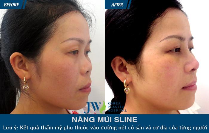 Sau khi nâng mũi S Line, chiếc mũi trở nên hài hòa với gương mặt