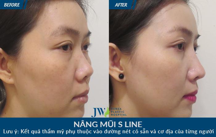 Mũi khách hàng ngắn, hếch được nâng mũi S line làm cho gương mặt sắc sảo rõ nét
