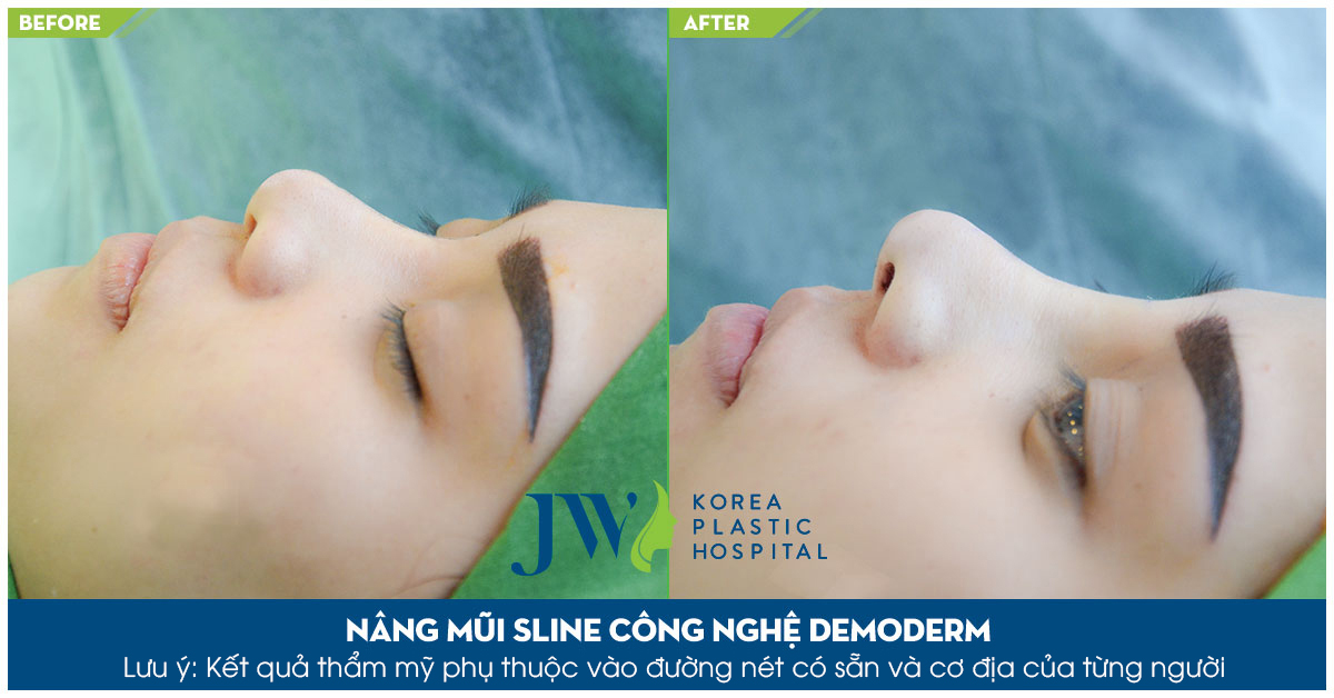 Nâng mũi không phẫu thuật hiệu quả lâu dài