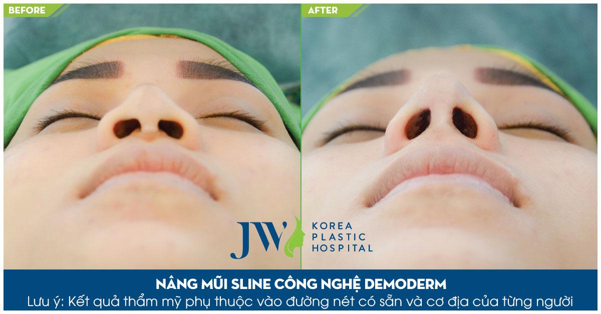 Nâng mũi S Line bằng Demoderm – Khắc phục mũi biến chứng