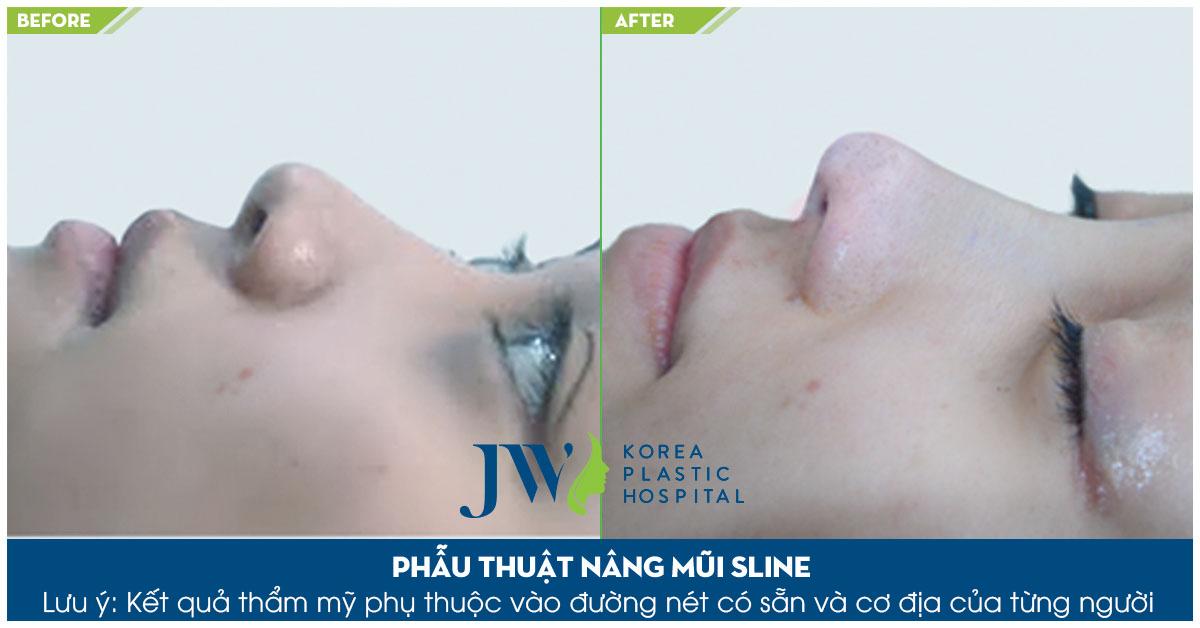 Phẫu thuật mũi khoằm - Mũi két