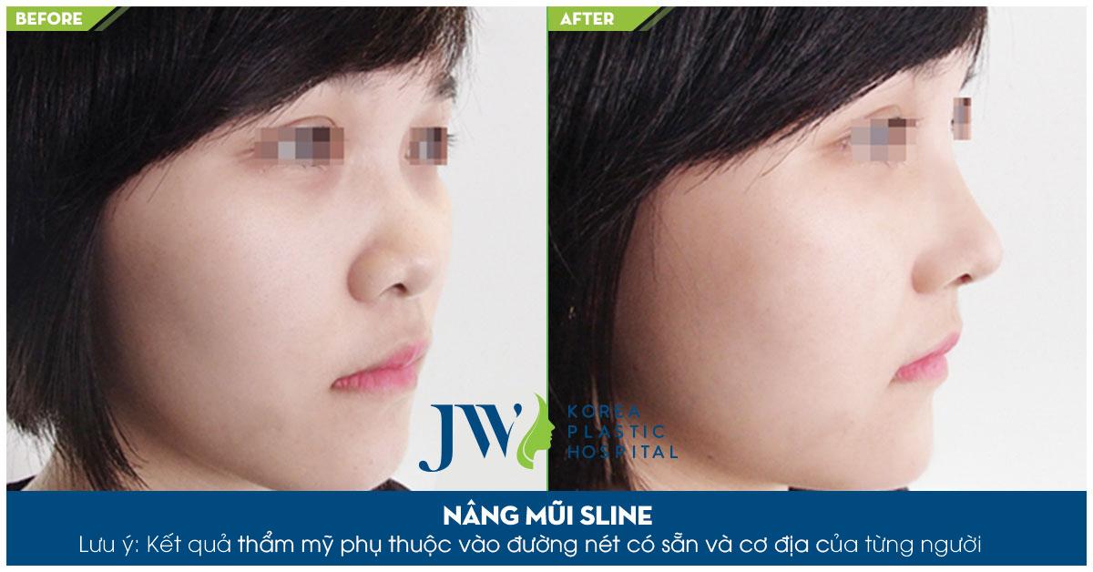 Sửa mũi có thay đổi vận mệnh