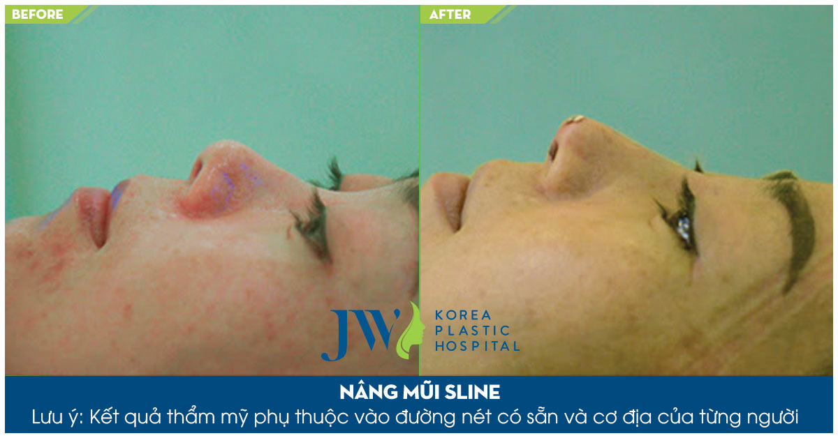 Sửa mũi ngắn - Trước và sau 1