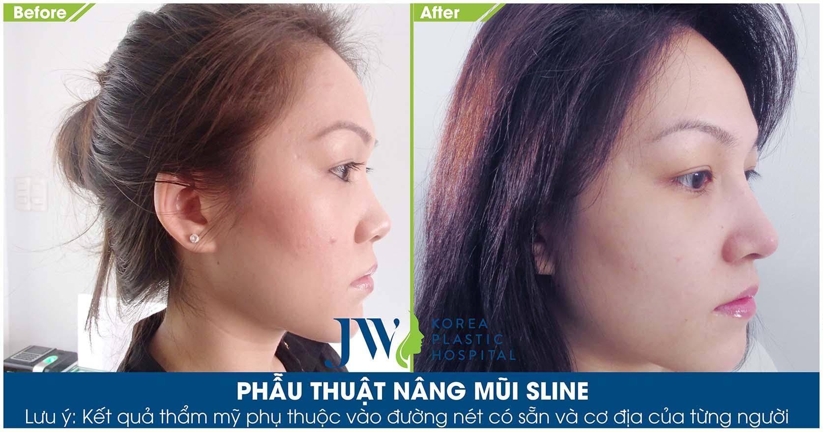 Khách hàng với khuôn mặt xinh đẹp cuốn hút sau khi nâng mũi S Line