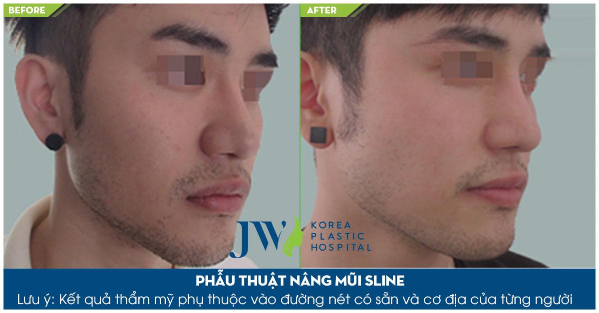 Hình ảnh khách hàng trước và sau khi nâng mũi S Line