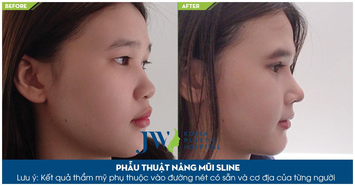 mũi S Line thanh tú sau khi phẫu thuật