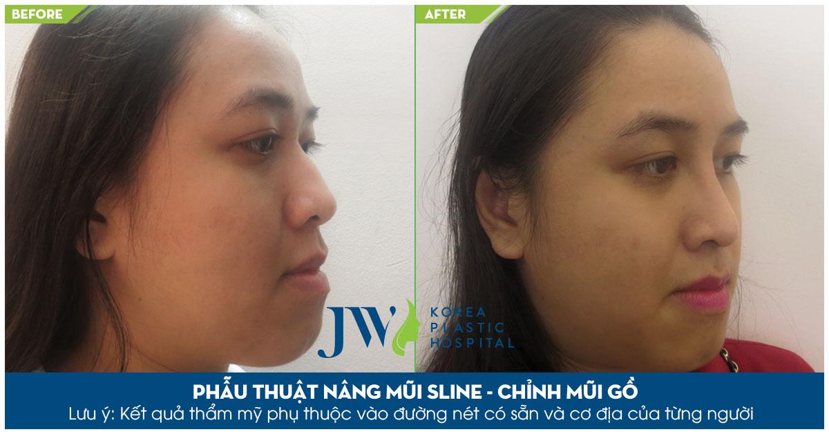Sau khi phẫu thuật nâng mũi S Line kết hợp chỉnh mũi gồ, khách hàng cảm thấy tự tin hơn rất nhiều