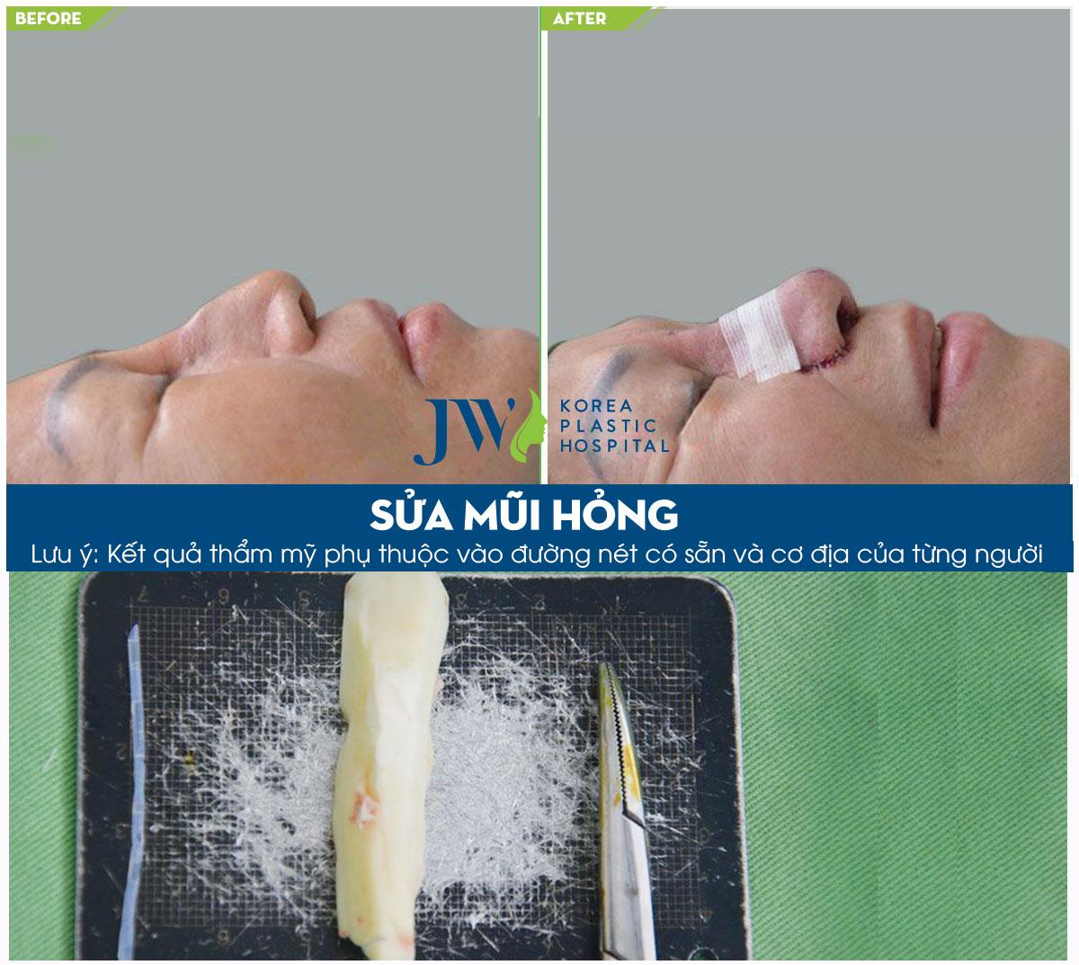 trước và sau khi sửa mũi hỏng