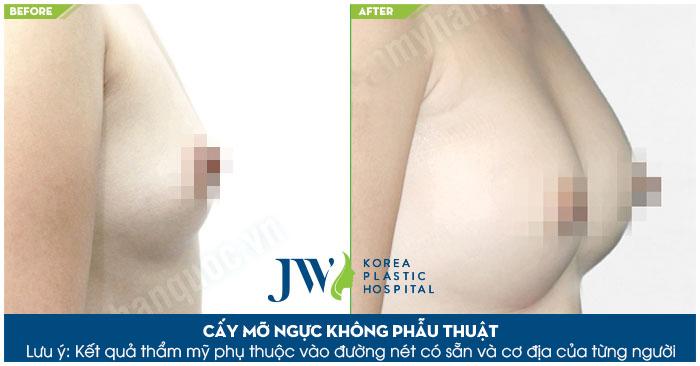 Nâng ngực không cần phẫu thuật ở đâu