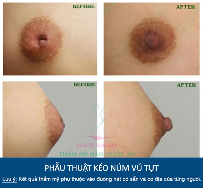 Phẫu thuật kéo núm vú tụt có an toàn không - Trước và sau