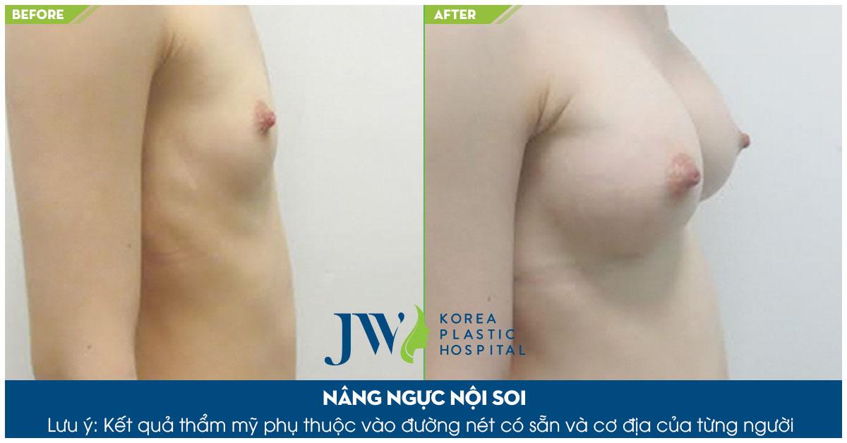 Nâng ngực có ảnh hưởng gì không - Trước và sau 2