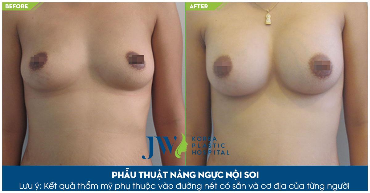 Nâng ngực Mika Vũ Thái