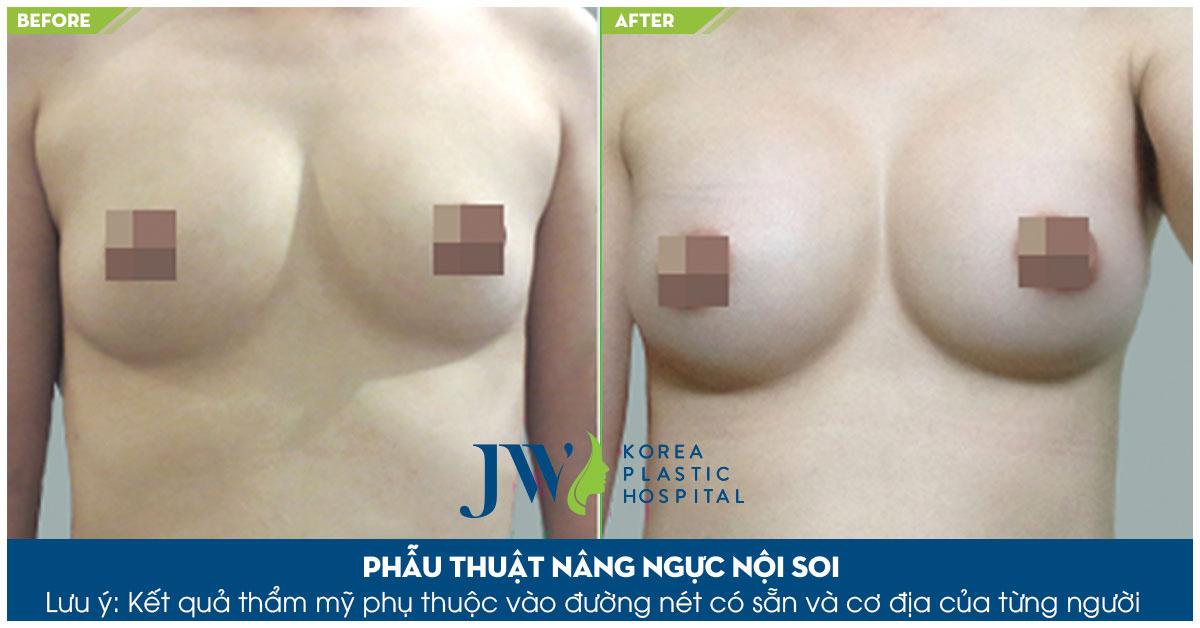 Nâng ngực có ảnh hưởng gì không - Trước và sau 1