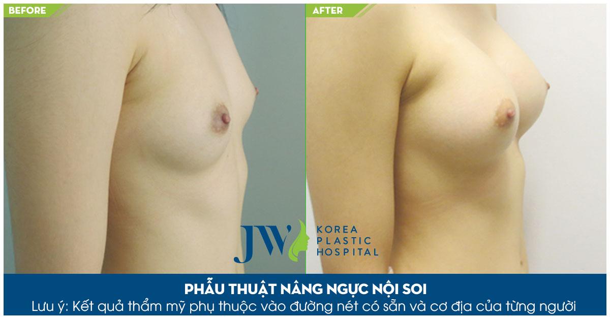 Phẫu thuật nâng ngực túi tròn