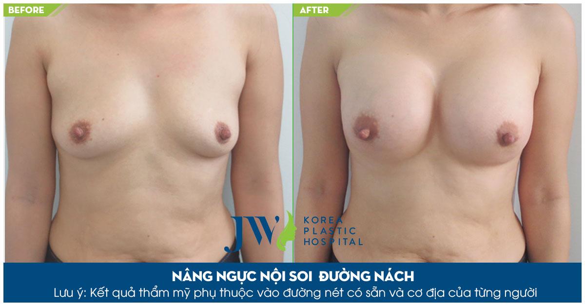 Nâng ngực túi Nano Chip bác sĩ Tú Dung