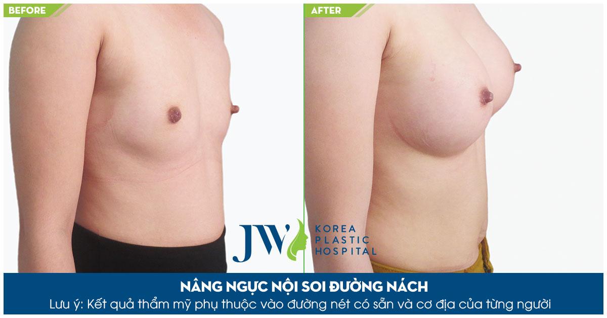 Phẫu thuật nâng ngực qua đường nách