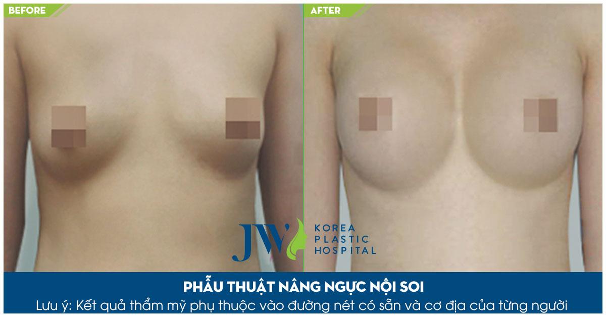 Nâng ngực có đau không