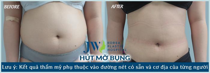 hut-mo-bung-bao-nhieu-tien-4