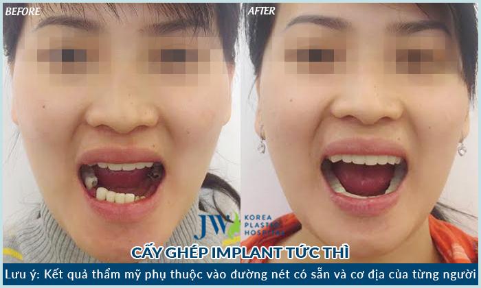 thoi-gian-cay-ghep-implant-bao-lau-moi-hoan-thanh-3