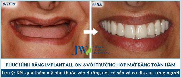 cay-ghep-rang-implant-mat-bao-nhieu-tien-de-phuc-hinh-rang-da-nho-3