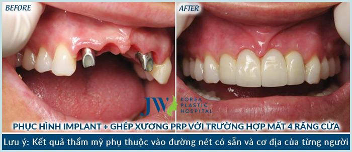 uu-diem-cua-cay-ghep-implant-trong-phuc-hinh-rang-tham-4