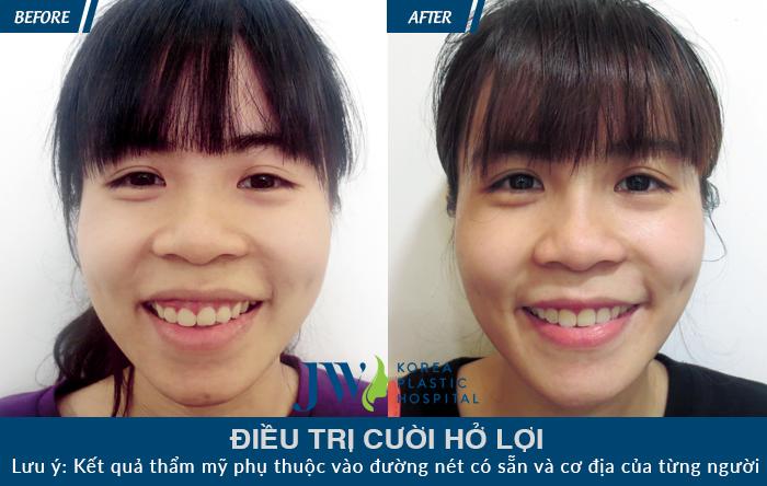 Chữa cười hở lợi không phẫu thuật như thế nào