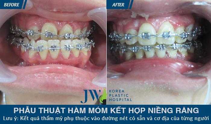 Niềng răng móm 1 hàm
