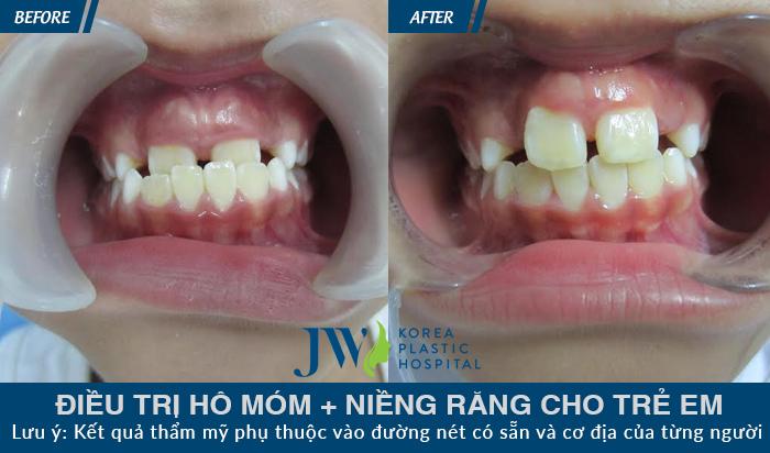 Niềng răng móm không cần phẫu thuật