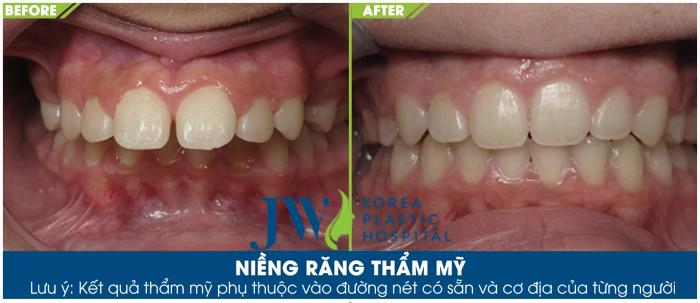 Những trường hợp nào thì nên niềng răng ngay?