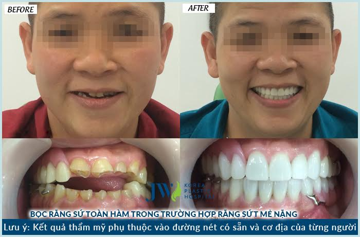 Khách hàng bọc răng sứ để khắc phục tình trạng răng sứt mẻ