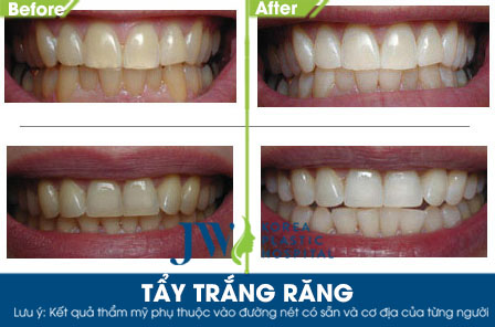 Tẩy trắng răng - Trước và sau