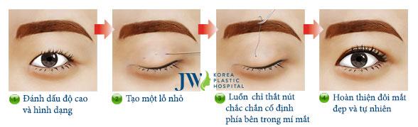 Bấm mí Doublelift - Tạo mắt 2 mí bền đẹp lâu dài - Ảnh 5