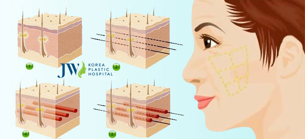 Căng da mặt SMAS là gì - Mô phỏng